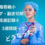 【小陰唇縮小手術、副ヒダと副皮の切除手術】3週間目の経過記録